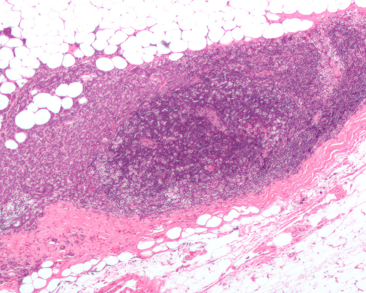 Breast_carcinoma_in_a_lymph_node