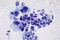 Non-small_cell_carcinoma_-_FNA_(5998093938)