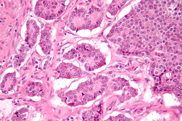 A neuroendocrine tumor of the small intestine. Credit: Nephron